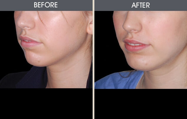Chin Implants Gallery - Patient 2206820 - Image 1