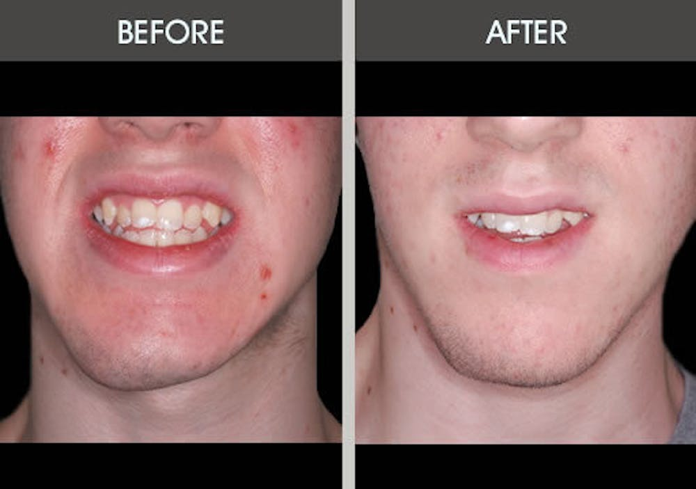 Chin Implants Gallery - Patient 2206846 - Image 1