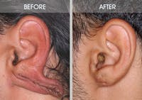 Earlobe Repair Gallery - Patient 2207115 - Image 1