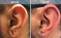 Earlobe Repair Gallery - Patient 2207119 - Image 1