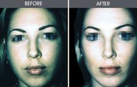 Buccal Fat Removal Gallery - Patient 2207141 - Image 1