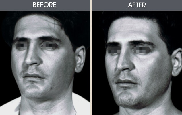 Buccal Fat Removal Gallery - Patient 2207142 - Image 1