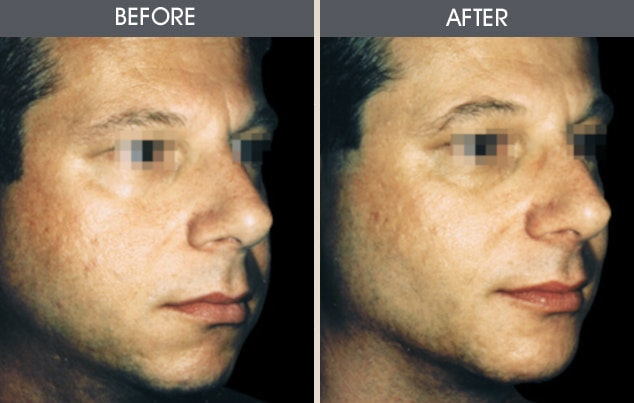 Buccal Fat Removal Gallery - Patient 2207143 - Image 1