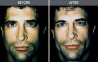 Buccal Fat Removal Gallery - Patient 2207145 - Image 1