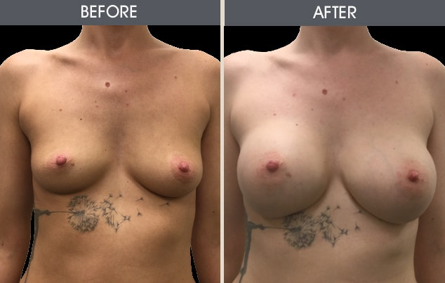 Breast Augmentation Gallery - Patient 2207151 - Image 1
