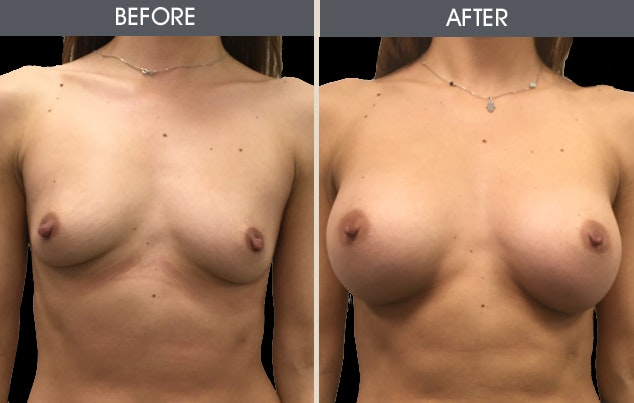 Breast Augmentation Gallery - Patient 2207153 - Image 1