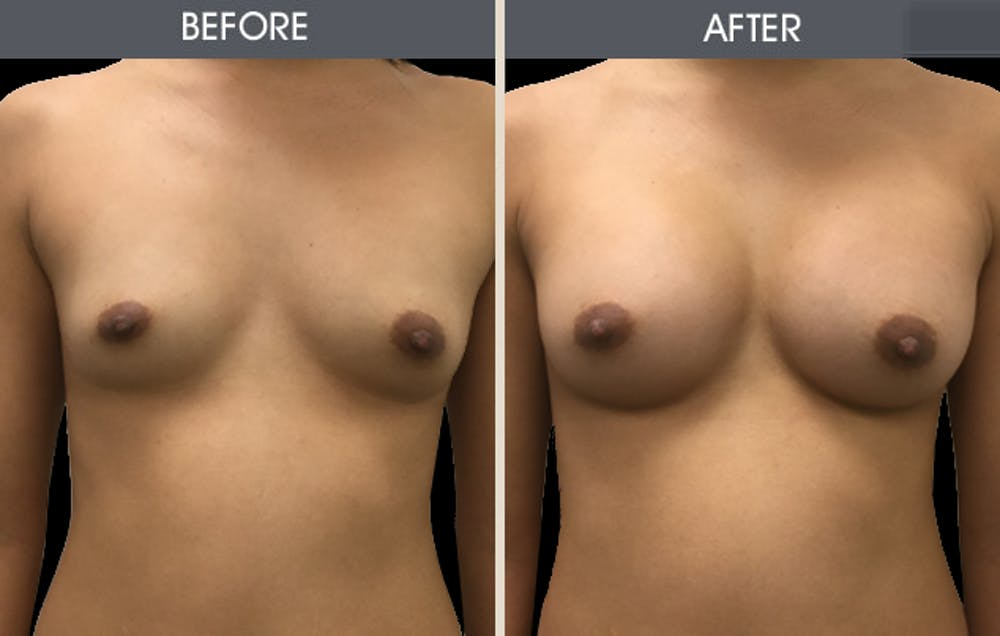 Breast Augmentation Gallery - Patient 2207154 - Image 1