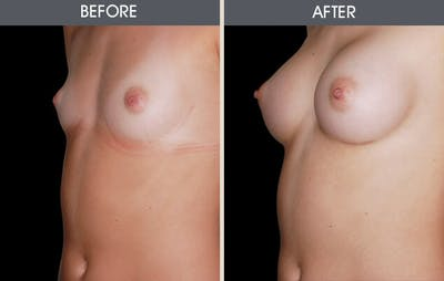 Breast Augmentation Gallery - Patient 2207155 - Image 1