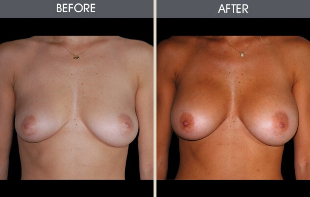 Breast Augmentation Gallery - Patient 2207156 - Image 1