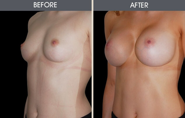 Breast Augmentation Gallery - Patient 2207157 - Image 1