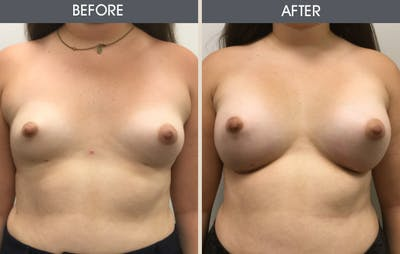 Breast Augmentation Gallery - Patient 2207162 - Image 1