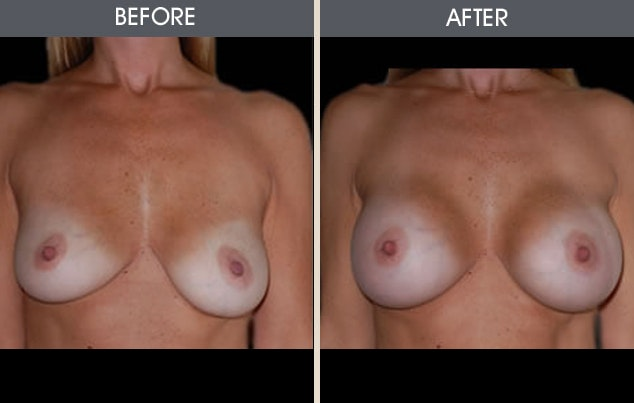 Breast Augmentation Gallery - Patient 2207164 - Image 1