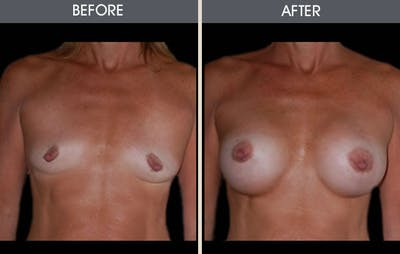 Breast Augmentation Gallery - Patient 2207165 - Image 1