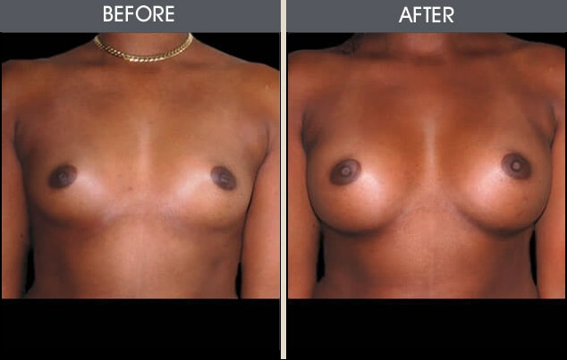 Breast Augmentation Gallery - Patient 2207167 - Image 1