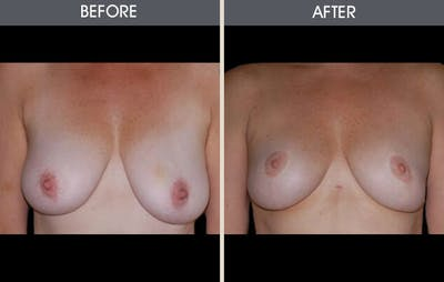 Breast Lift Gallery - Patient 2207169 - Image 1
