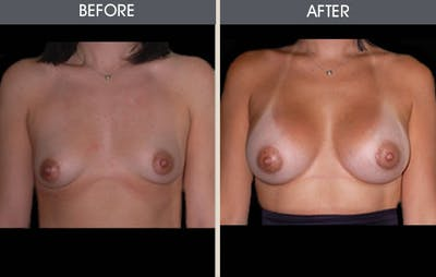 Breast Augmentation Gallery - Patient 2207171 - Image 1