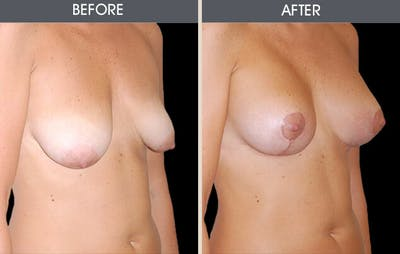 Breast Lift Gallery - Patient 2207172 - Image 1