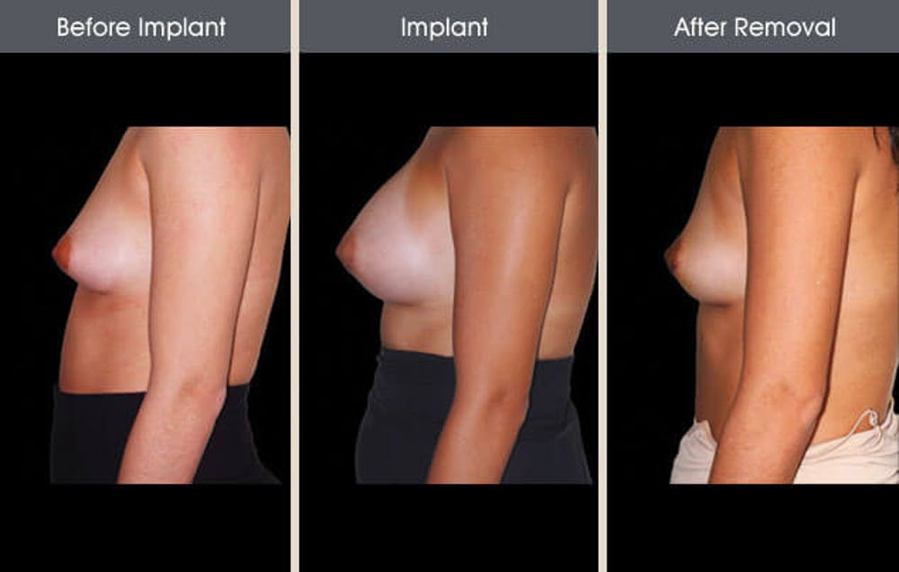Breast Implant Removal Gallery - Patient 2207173 - Image 1