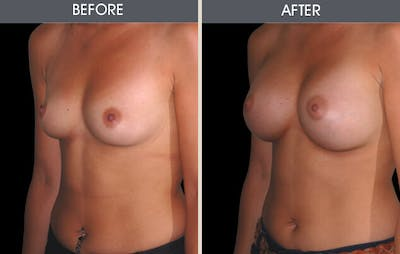 Breast Augmentation Gallery - Patient 2207174 - Image 1