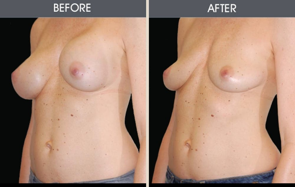 Breast Implant Removal Gallery - Patient 2207176 - Image 1