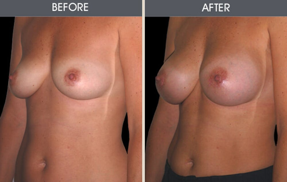 Breast Augmentation Gallery - Patient 2207177 - Image 1
