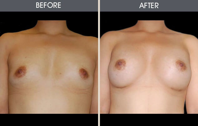 Breast Augmentation Gallery - Patient 2207180 - Image 1
