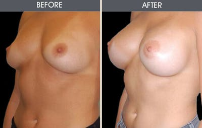 Breast Augmentation Gallery - Patient 2207181 - Image 1