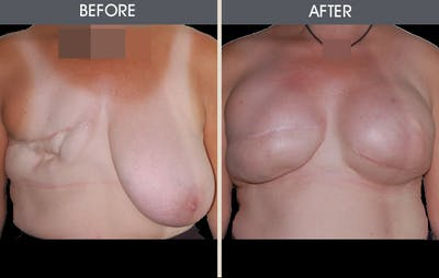 Breast Reconstruction Gallery - Patient 2207182 - Image 1