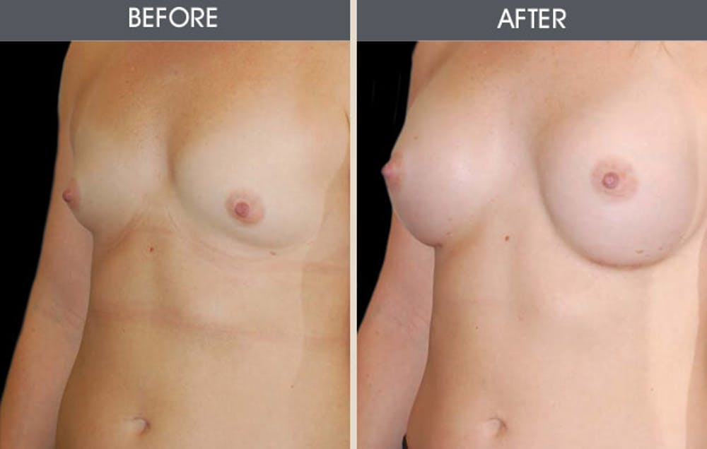 Breast Augmentation Gallery - Patient 2207184 - Image 1