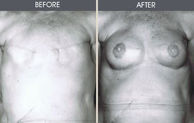 Breast Reconstruction Gallery - Patient 2207186 - Image 1