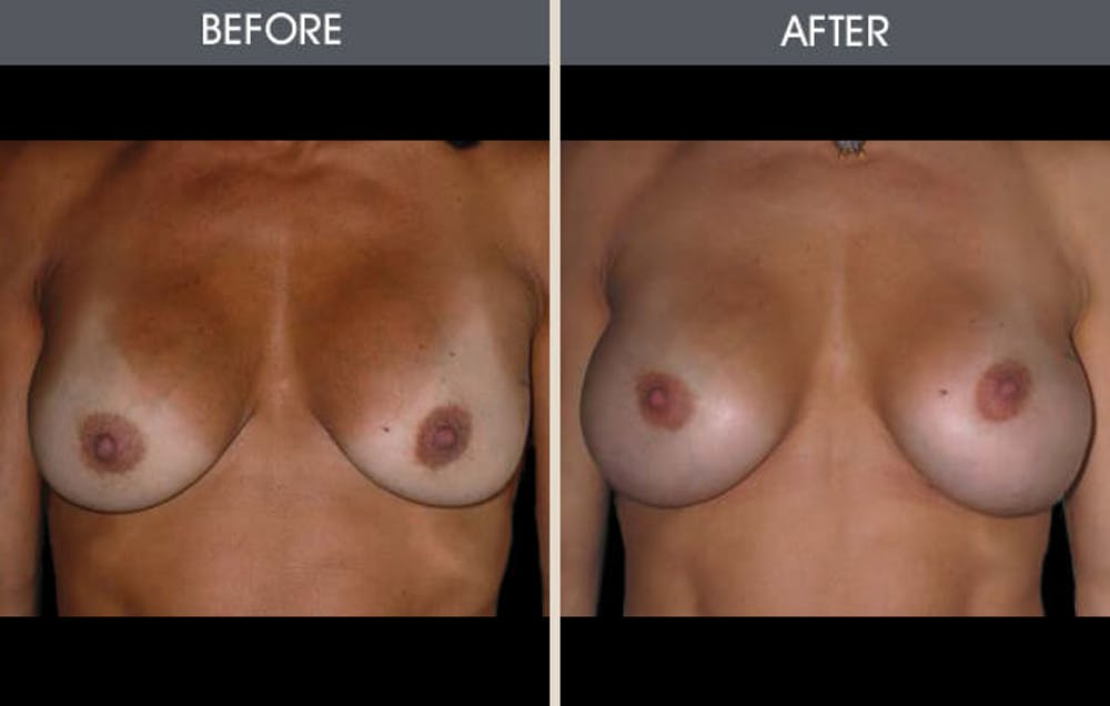 Breast Augmentation Gallery - Patient 2207185 - Image 1