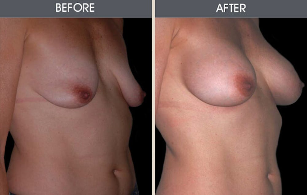 Breast Augmentation Gallery - Patient 2207188 - Image 1