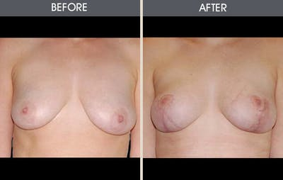 Breast Reconstruction Gallery - Patient 2207187 - Image 1