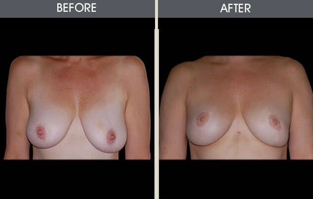 Breast Reduction Gallery - Patient 2207189 - Image 1