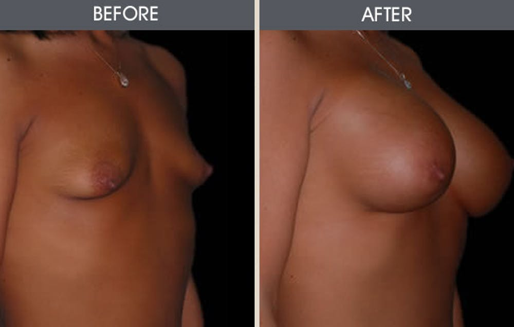 Breast Augmentation Gallery - Patient 2207192 - Image 1