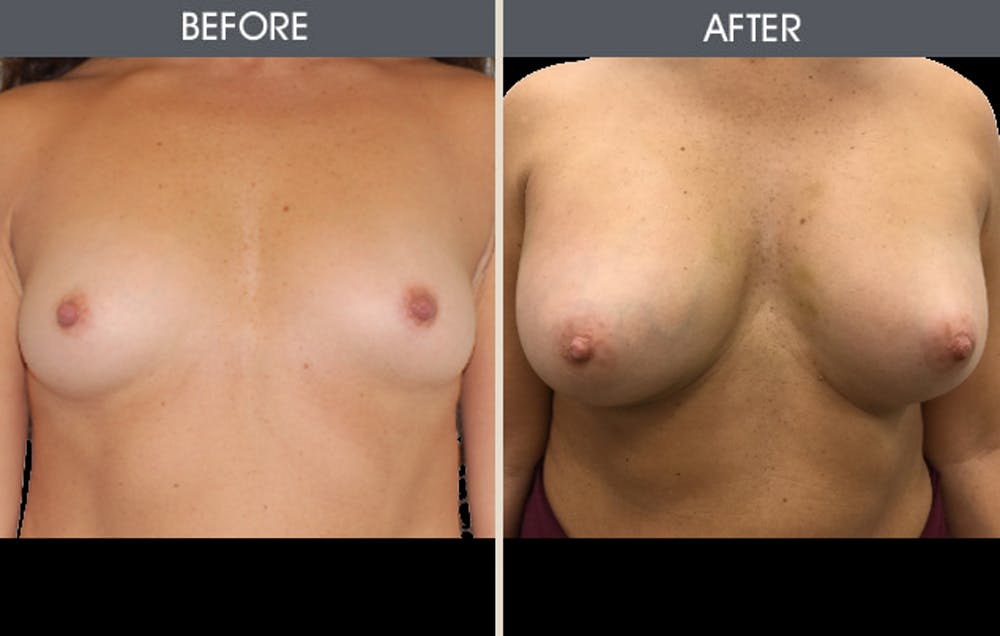 Breast Augmentation Gallery - Patient 2207194 - Image 1