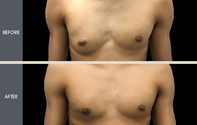 Male Breast Reduction Gallery - Patient 2207196 - Image 1