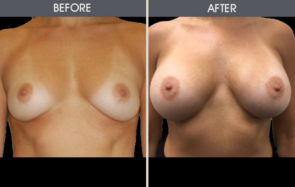 Breast Augmentation Gallery - Patient 2207207 - Image 1