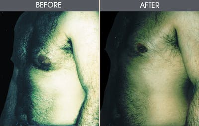 Male Breast Reduction Gallery - Patient 2207208 - Image 1