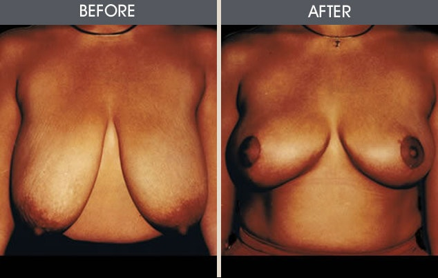 Breast Reduction Gallery - Patient 2207210 - Image 1