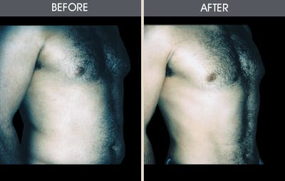 Male Breast Reduction Gallery - Patient 2207211 - Image 1