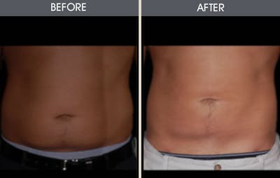 Liposuction Gallery - Patient 2207212 - Image 1