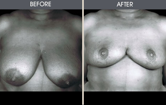 Breast Reduction Gallery - Patient 2207214 - Image 1