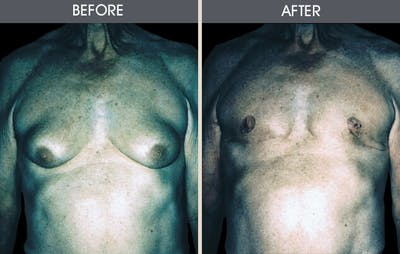 Male Breast Reduction Gallery - Patient 2207216 - Image 1