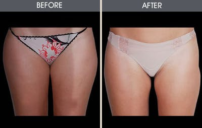 Liposuction Gallery - Patient 2207222 - Image 1