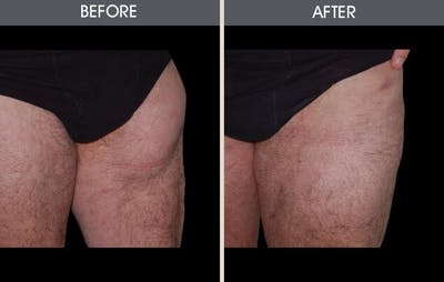 Liposuction Gallery - Patient 2207223 - Image 1