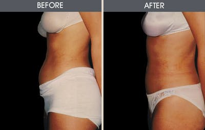 Liposuction Gallery - Patient 2207224 - Image 1