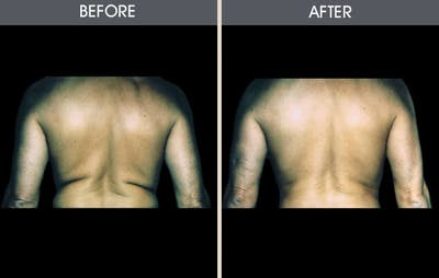 Liposuction Gallery - Patient 2207225 - Image 1