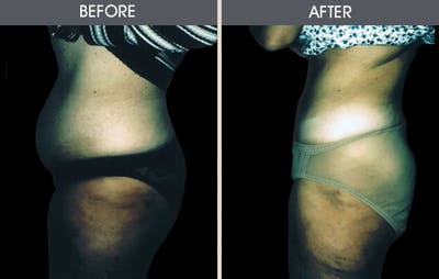Liposuction Gallery - Patient 2207226 - Image 1