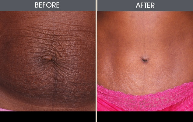 Tummy Tuck Gallery - Patient 2207229 - Image 1